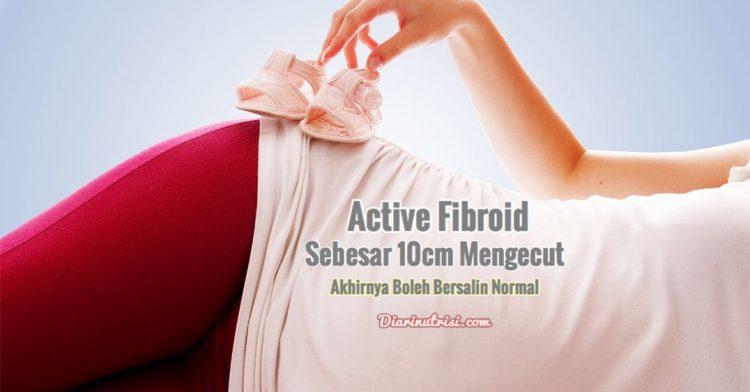 [Atasi Aktif Fibroid] Wanita Ini Akhirnya Boleh Bersalin Normal Apabila Fibroid Sebesar 10cm Mengecut
