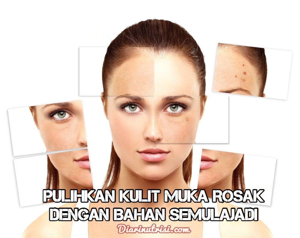 Pulihkan Kulit Muka Rosak Akibat Kosmetik Beracun Dengan Bahan Semulajadi