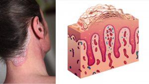 kulit psoriasis