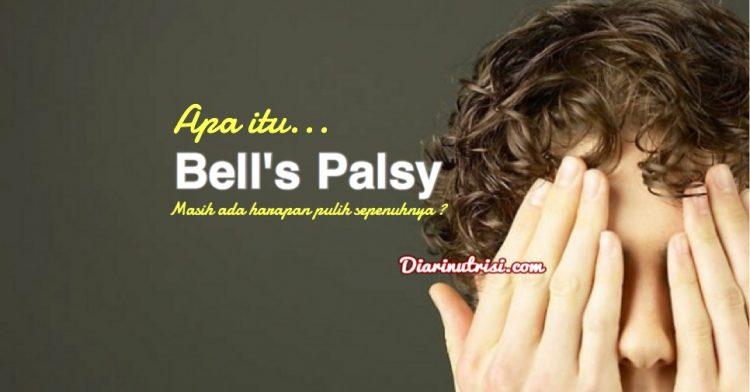 Rawatan Penyakit Bell's Palsy Bantu Pulih Dengan Cepat