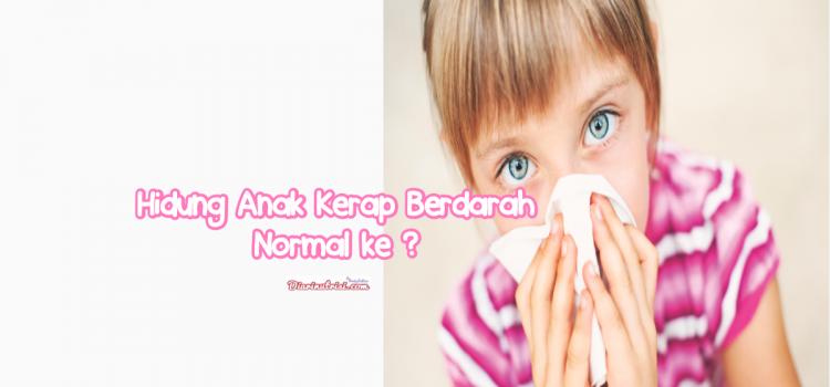 Tips Tingkatkan Sistem Imun Anak Elak Hidung Kerap Berdarah