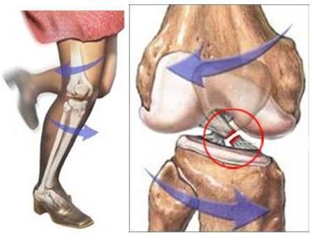 suplemen lutut koyak